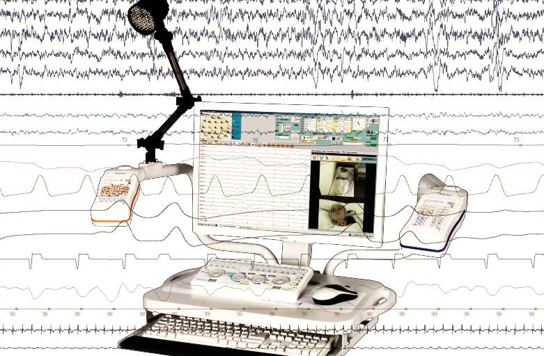 La polisonnografia è dolorosa?